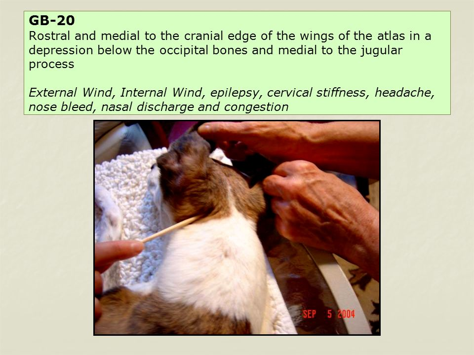 GB-20 Rostral and medial to the cranial edge of the wings of the atlas in a depression below the occipital bones and medial to the jugular process External Wind, Internal Wind, epilepsy, cervical stiffness, headache, nose bleed, nasal discharge and congestion