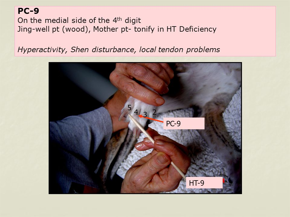 PC-9 On the medial side of the 4 th digit Jing-well pt (wood), Mother pt- tonify in HT Deficiency Hyperactivity, Shen disturbance, local tendon problems PC-9 HT-9 2 3 4 5