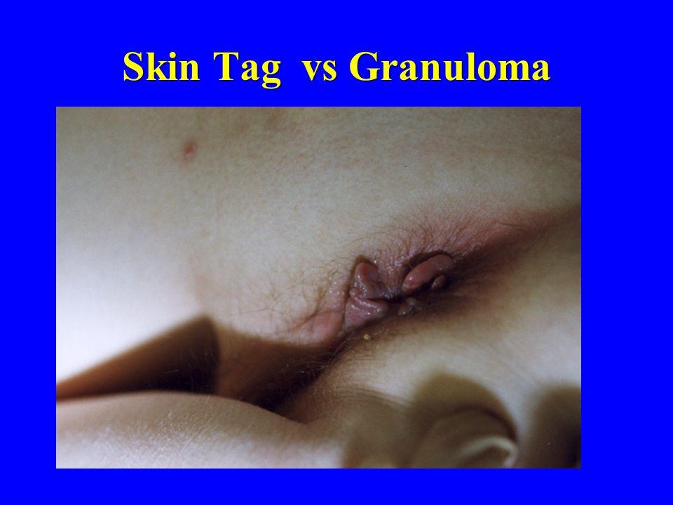Skin Tag vs Granuloma