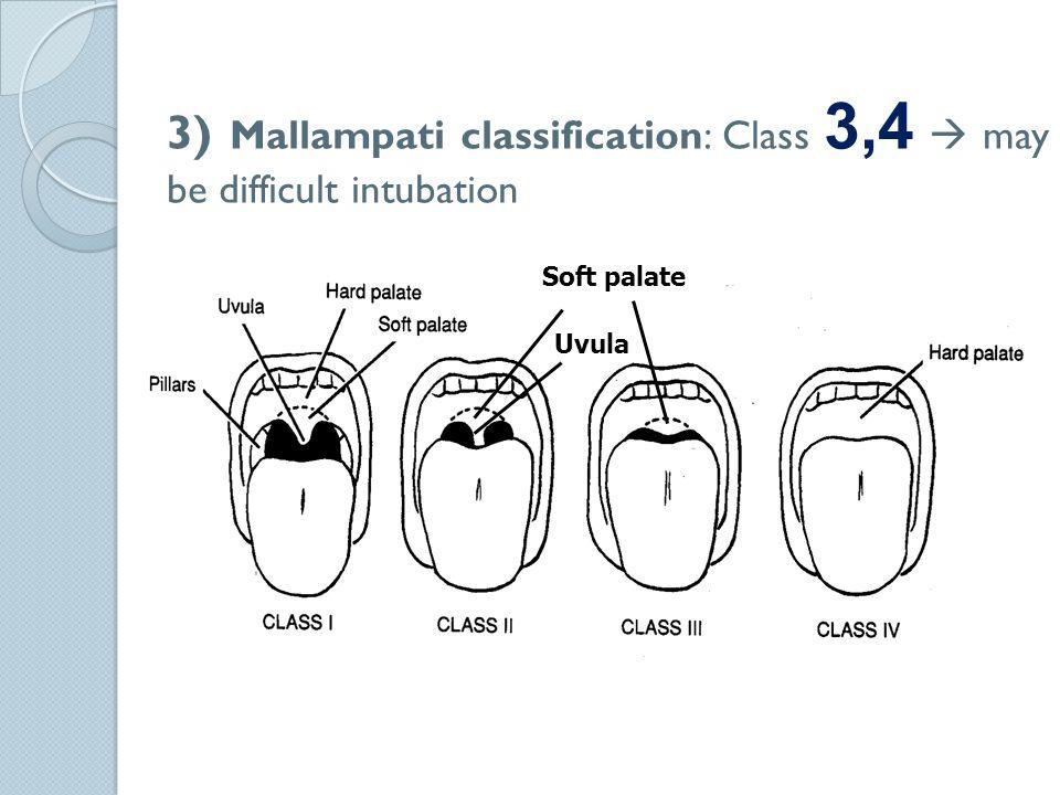 3) Mallampati classification: Class 3,4  may be difficult intubation Soft palate Uvula