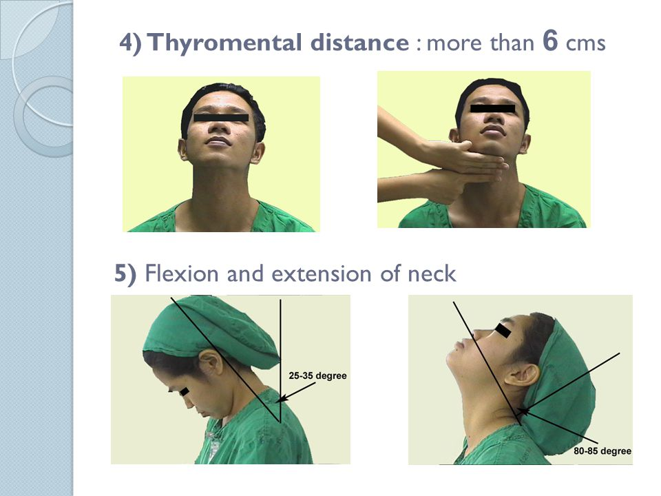4) Thyromental distance : more than 6 cms 5) Flexion and extension of neck