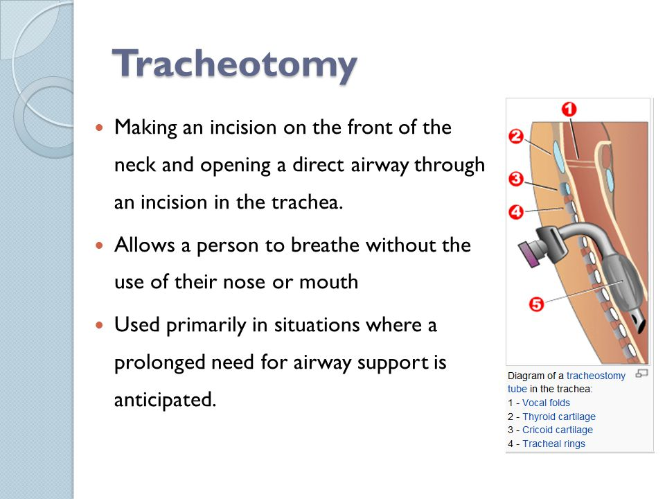 Tracheotomy Making an incision on the front of the neck and opening a direct airway through an incision in the trachea. Allows a person to breathe wit
