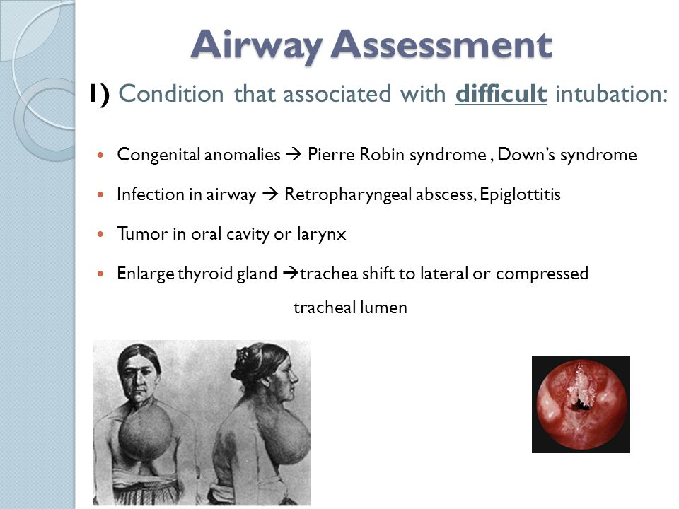 Airway Assessment Congenital anomalies  Pierre Robin syndrome, Down's syndrome Infection in airway  Retropharyngeal abscess, Epiglottitis Tumor in oral cavity or larynx Enlarge thyroid gland  trachea shift to lateral or compressed tracheal lumen 1) Condition that associated with difficult intubation: