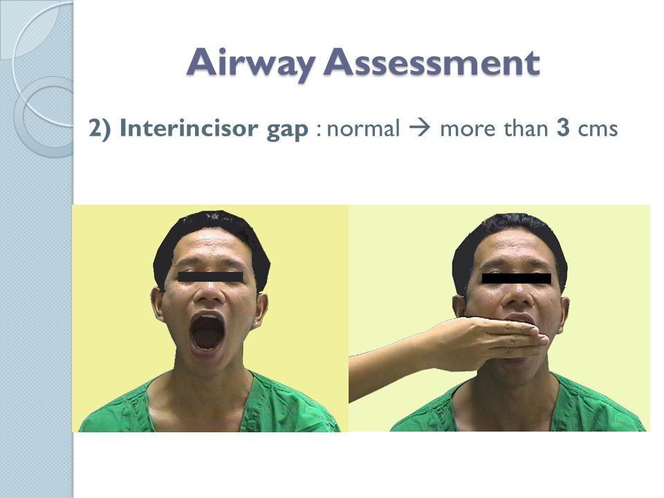 2) Interincisor gap : normal  more than 3 cms Airway Assessment