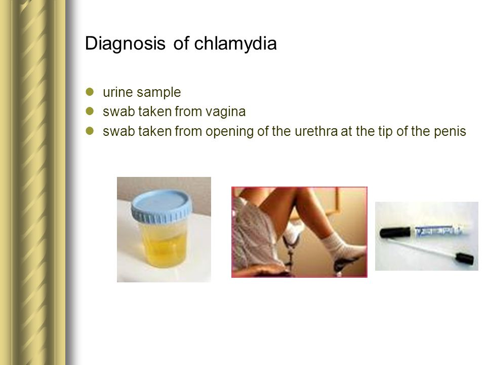 Diagnosis of chlamydia urine sample swab taken from vagina swab taken from opening of the urethra at the tip of the penis