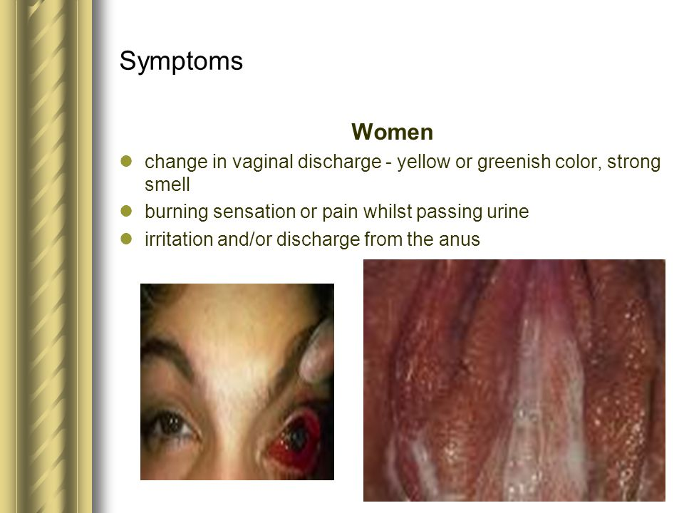 Symptoms Women change in vaginal discharge - yellow or greenish color, strong smell burning sensation or pain whilst passing urine irritation and/or d