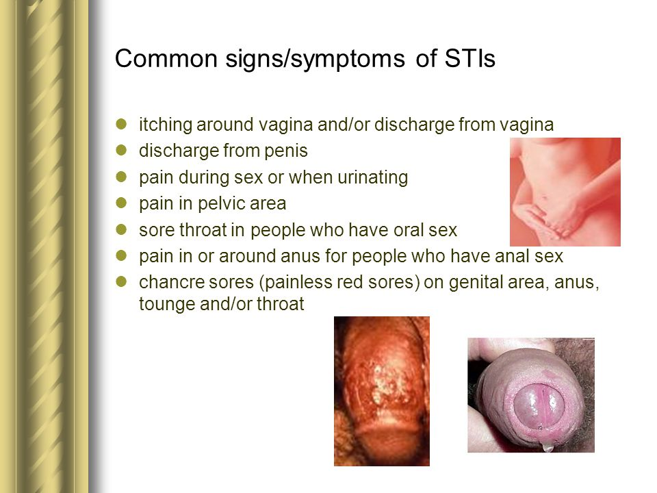 Can anal sex cause infections