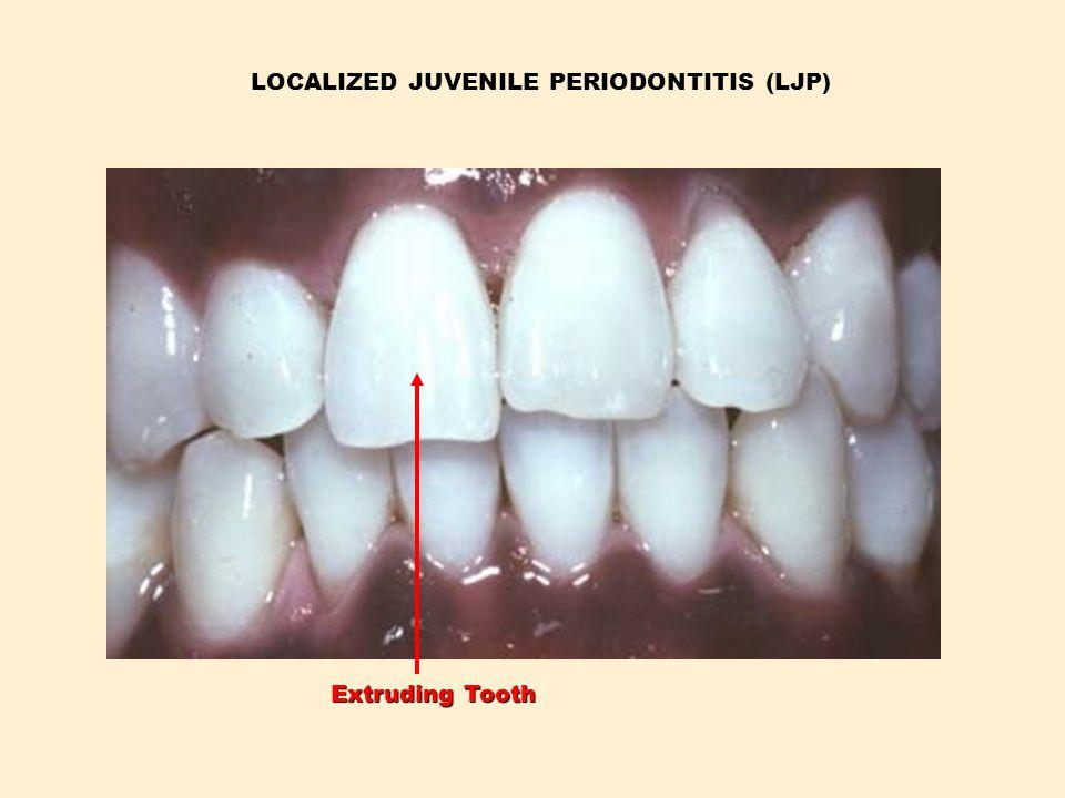 LOCALIZED JUVENILE PERIODONTITIS (LJP) Extruding Tooth