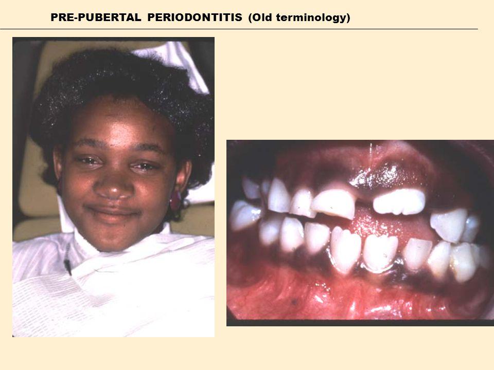 PRE-PUBERTAL PERIODONTITIS (Old terminology)