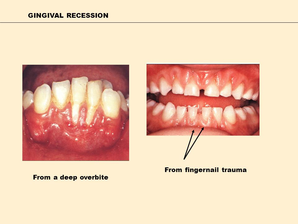 GINGIVAL RECESSION From a deep overbite From fingernail trauma
