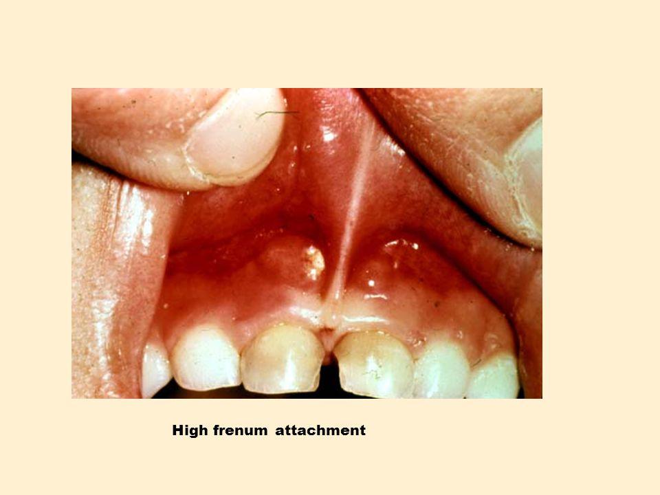 High frenum attachment