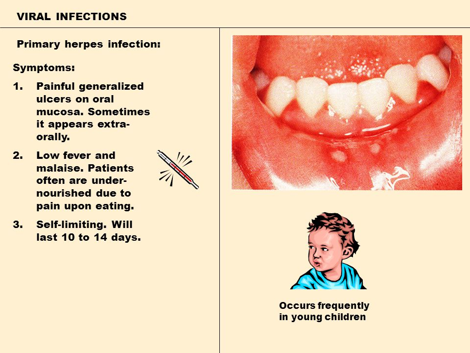 VIRAL INFECTIONS Primary herpes infection: Symptoms: 1.Painful generalized ulcers on oral mucosa. Sometimes it appears extra- orally. 2.Low fever and