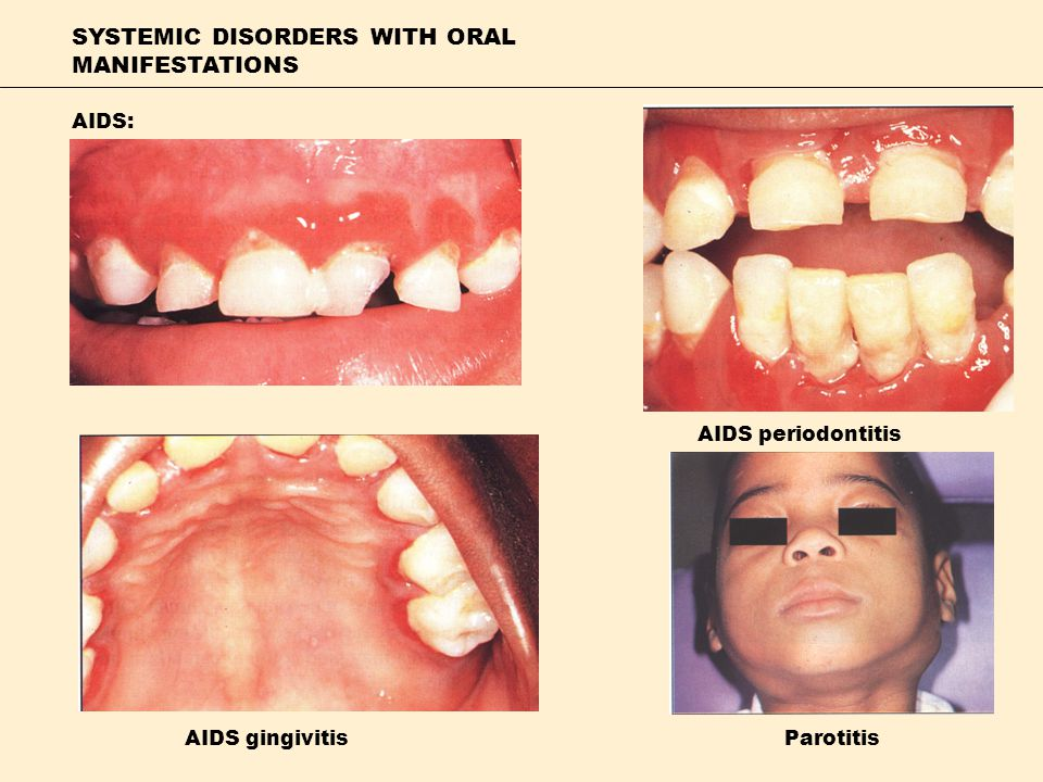 SYSTEMIC DISORDERS WITH ORAL MANIFESTATIONS AIDS: AIDS gingivitis AIDS periodontitis Parotitis