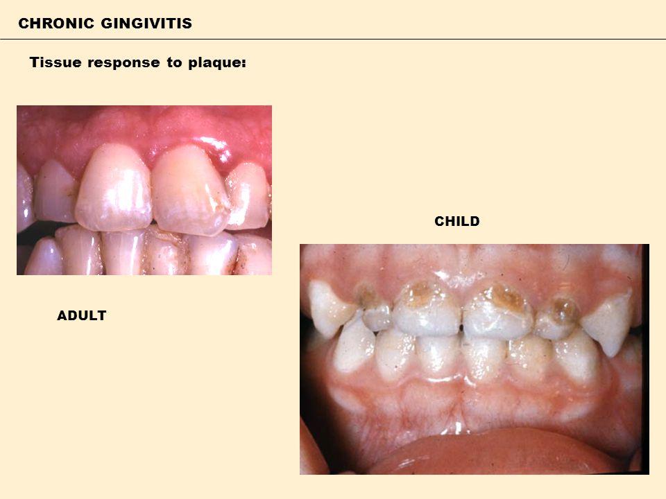 CHRONIC GINGIVITIS Tissue response to plaque: ADULT CHILD