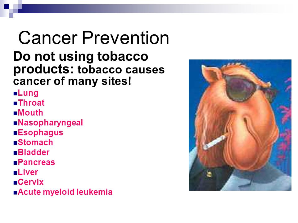 Cancer Prevention Do not using tobacco products: tobacco causes cancer of many sites.