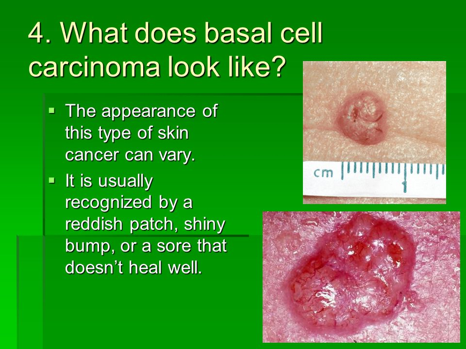 4. What does basal cell carcinoma look like?  The appearance of this type of skin cancer can vary.  It is usually recognized by a reddish patch, shi