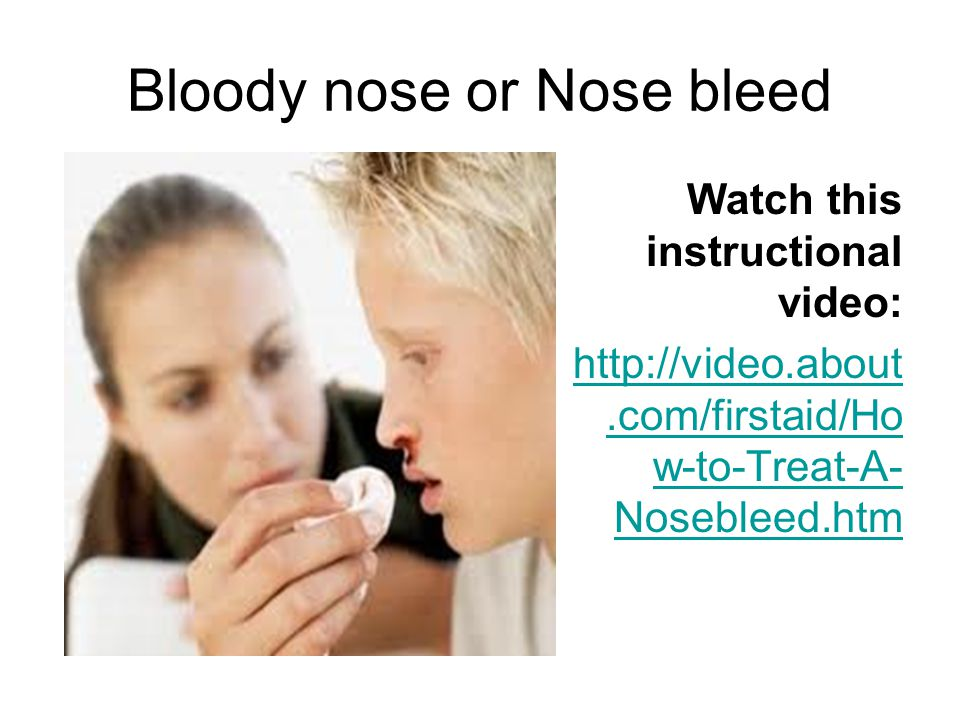 Bloody nose or Nose bleed Watch this instructional video: http://video.about.com/firstaid/Ho w-to-Treat-A- Nosebleed.htm