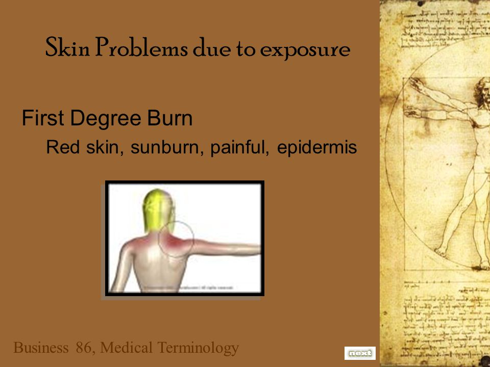 Business 86, Medical Terminology Skin Problems due to exposure First Degree Burn Red skin, sunburn, painful, epidermis