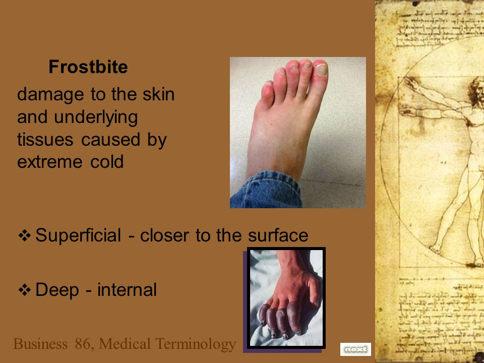 Business 86, Medical Terminology Frostbite damage to the skin and underlying tissues caused by extreme cold SSuperficial - closer to the surface DDeep - internal