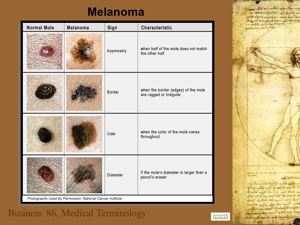 Business 86, Medical Terminology Melanoma