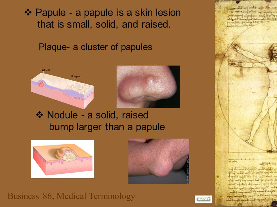  Papule - a papule is a skin lesion that is small, solid, and raised.