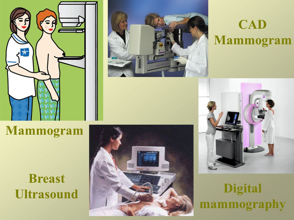 Mammogram CAD Mammogram Digital mammography Breast Ultrasound