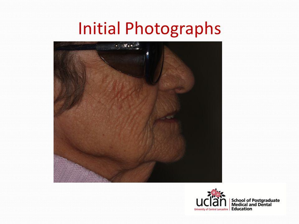 Initial Photographs