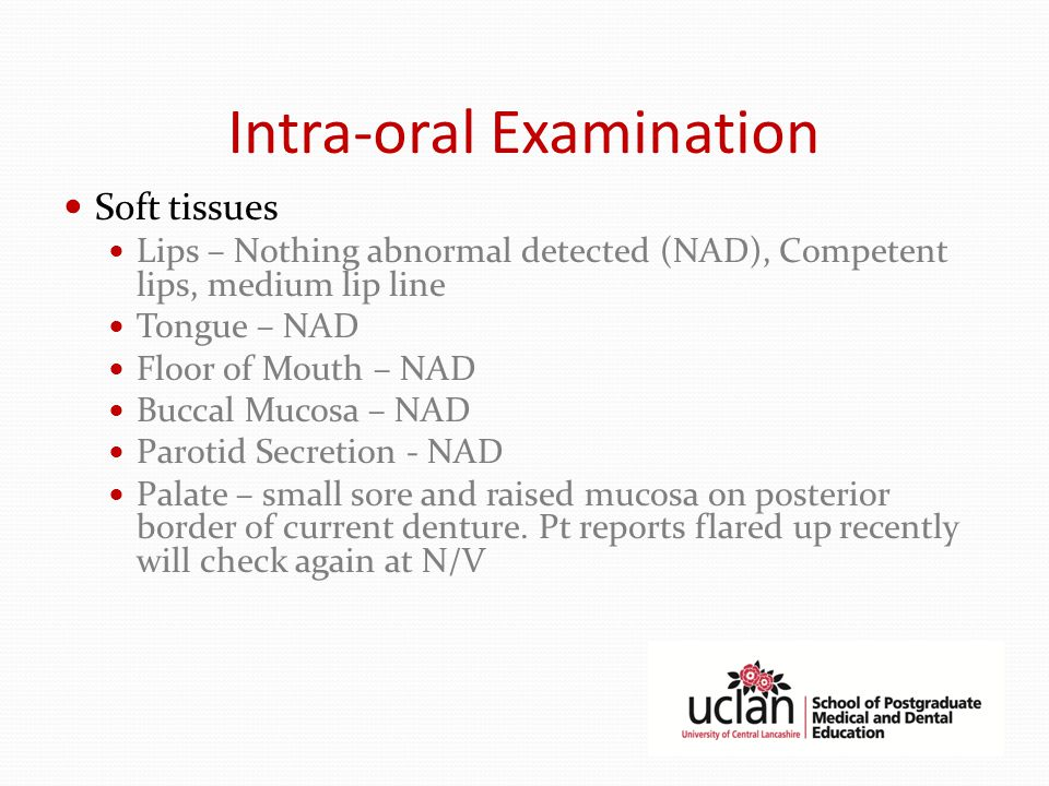 Intra-oral Examination Soft tissues Lips – Nothing abnormal detected (NAD), Competent lips, medium lip line Tongue – NAD Floor of Mouth – NAD Buccal Mucosa – NAD Parotid Secretion - NAD Palate – small sore and raised mucosa on posterior border of current denture.