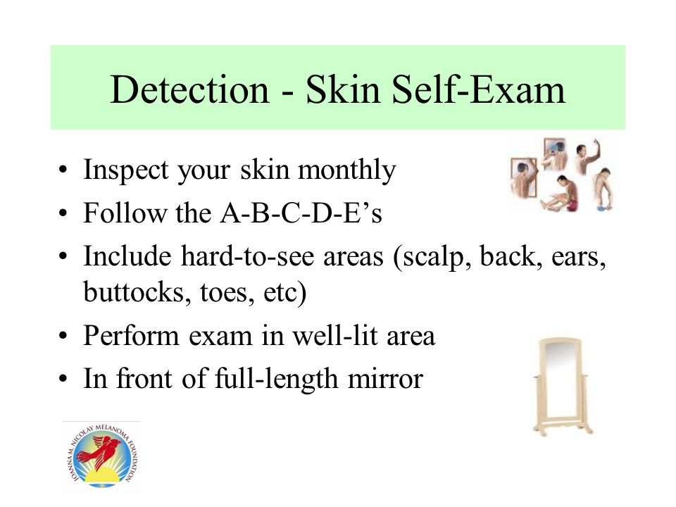 Detection - Skin Self-Exam Inspect your skin monthly Follow the A-B-C-D-E's Include hard-to-see areas (scalp, back, ears, buttocks, toes, etc) Perform