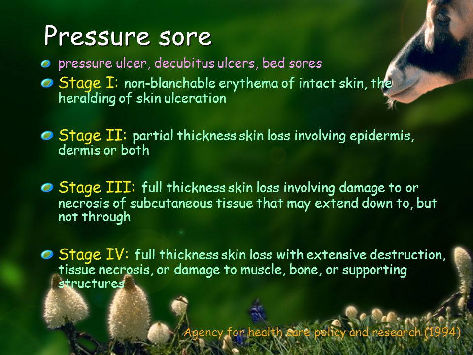 Pressure sore pressure ulcer, decubitus ulcers, bed sores Stage I: non-blanchable erythema of intact skin, the heralding of skin ulceration Stage II: partial thickness skin loss involving epidermis, dermis or both Stage III: full thickness skin loss involving damage to or necrosis of subcutaneous tissue that may extend down to, but not through Stage IV: full thickness skin loss with extensive destruction, tissue necrosis, or damage to muscle, bone, or supporting structures Agency for health care policy and research (1994)