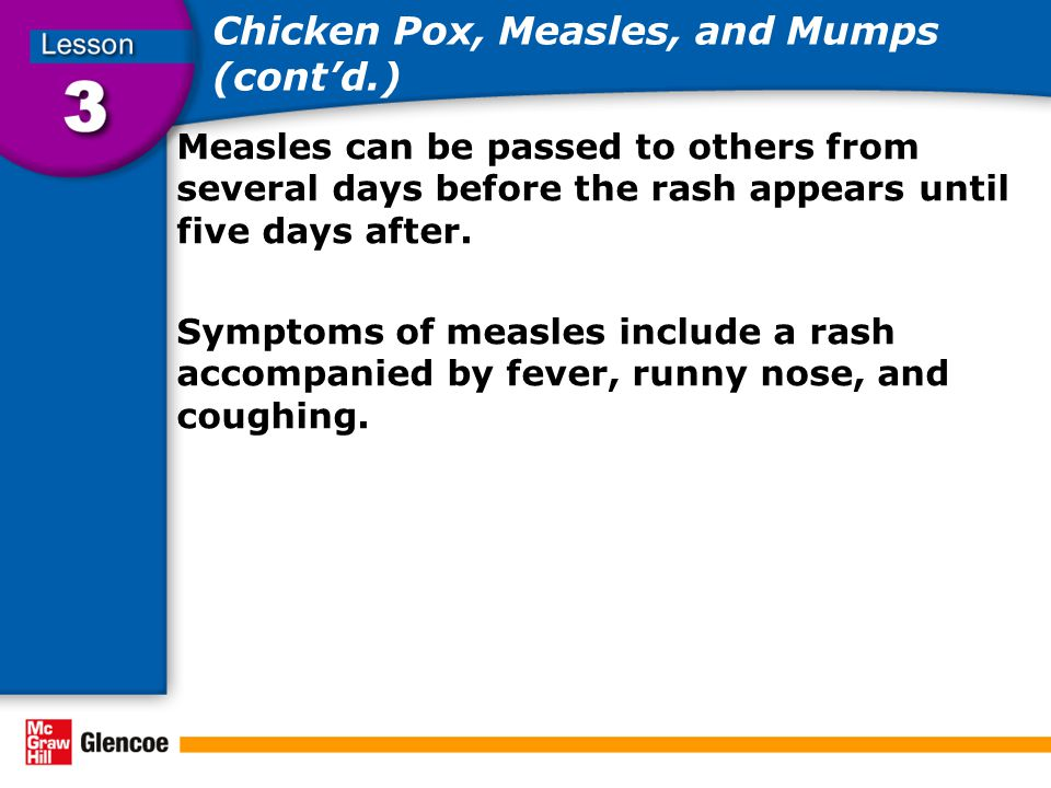 Chicken Pox, Measles, and Mumps (cont'd.) Measles can be passed to others from several days before the rash appears until five days after. Symptoms of