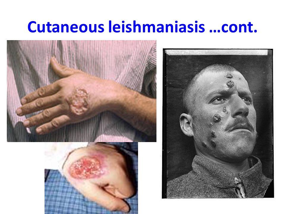 Cutaneous leishmaniasis …cont.