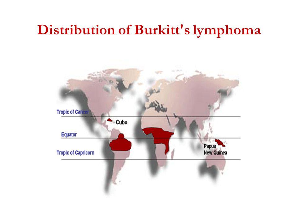 Distribution of Burkitt s lymphoma