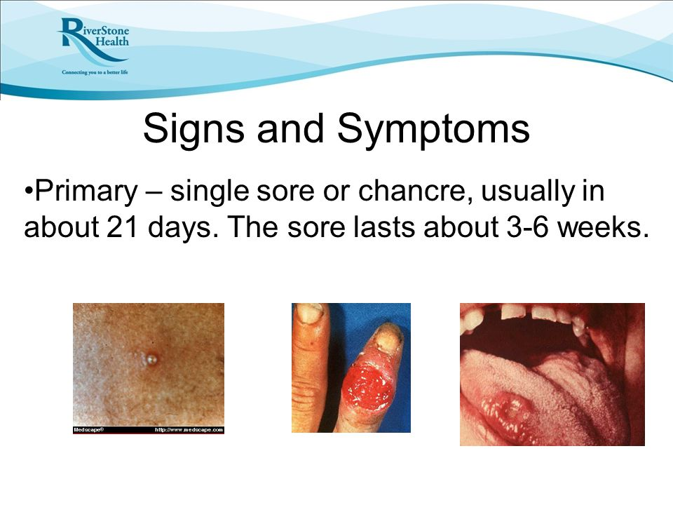 Signs and Symptoms Primary – single sore or chancre, usually in about 21 days.