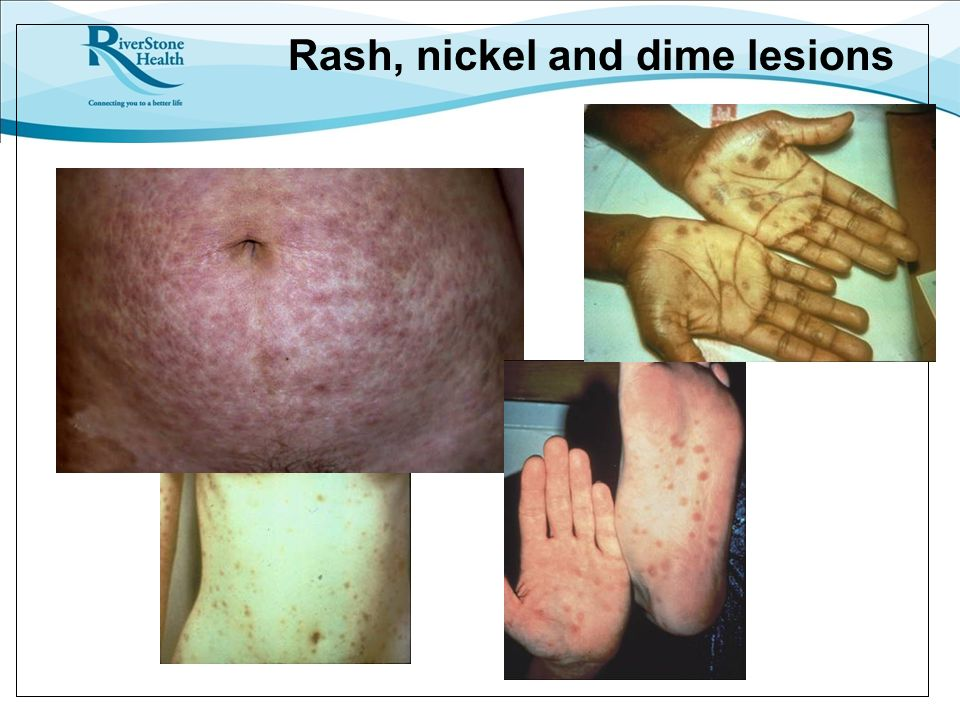 Rash, nickel and dime lesions
