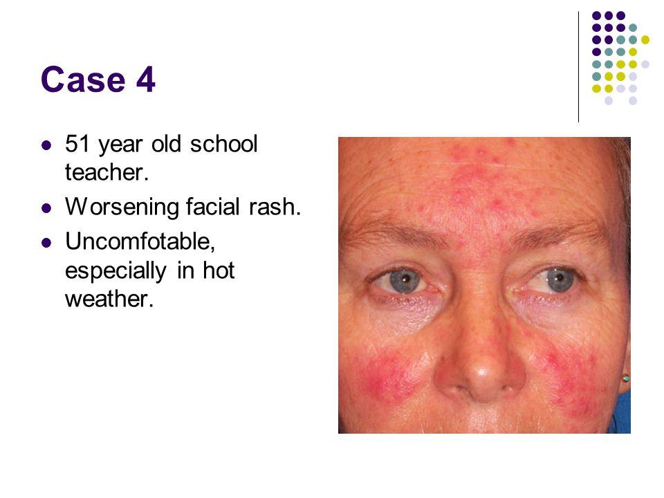 Case 4 51 year old school teacher. Worsening facial rash. Uncomfotable, especially in hot weather.