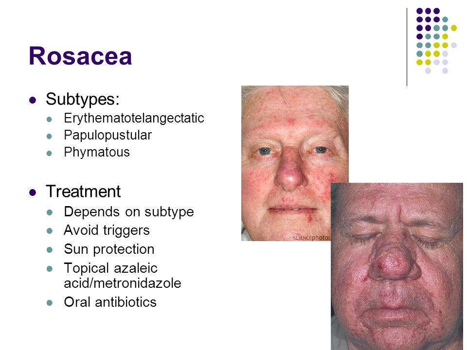 Rosacea Subtypes: Erythematotelangectatic Papulopustular Phymatous Treatment Depends on subtype Avoid triggers Sun protection Topical azaleic acid/met