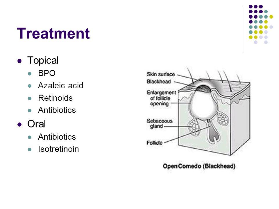 Treatment Topical BPO Azaleic acid Retinoids Antibiotics Oral Antibiotics Isotretinoin