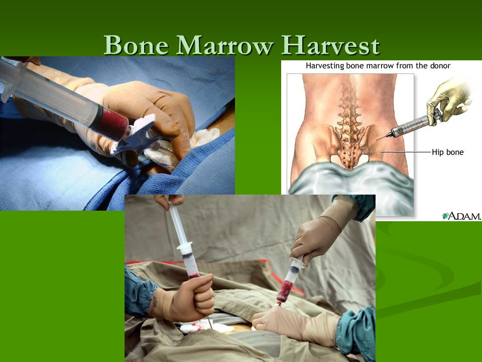 Bone Marrow Harvest