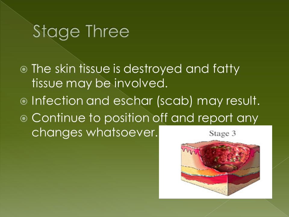  The skin tissue is destroyed and fatty tissue may be involved.