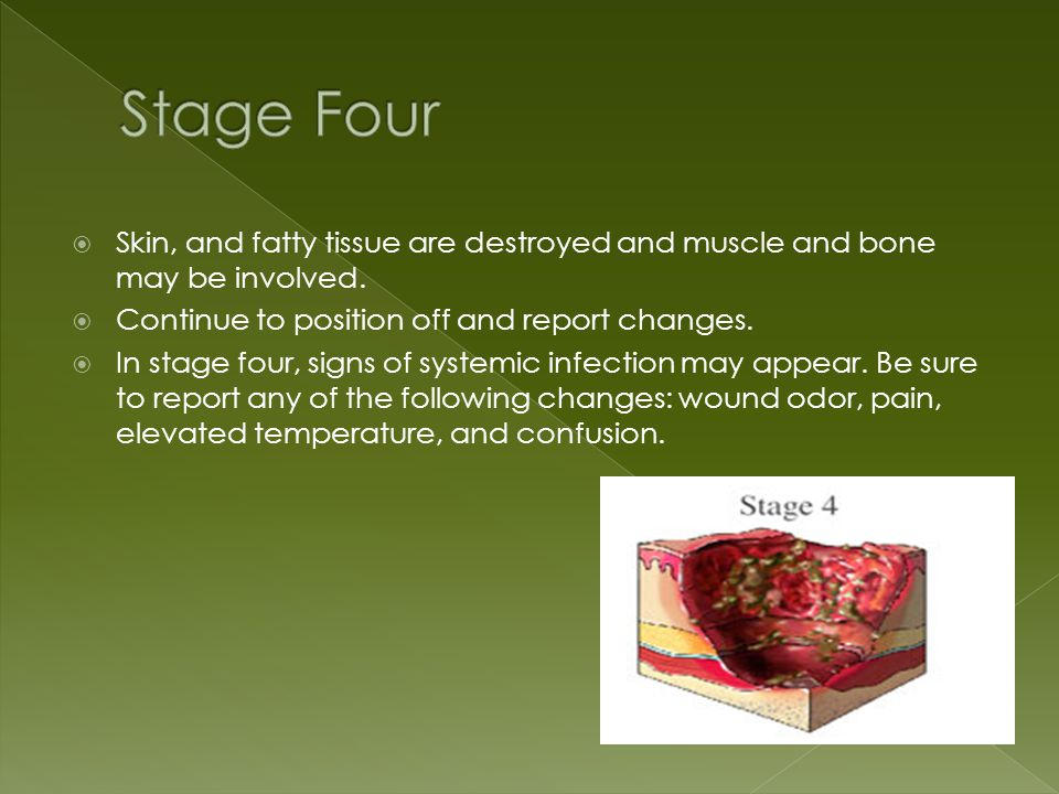  Skin, and fatty tissue are destroyed and muscle and bone may be involved.