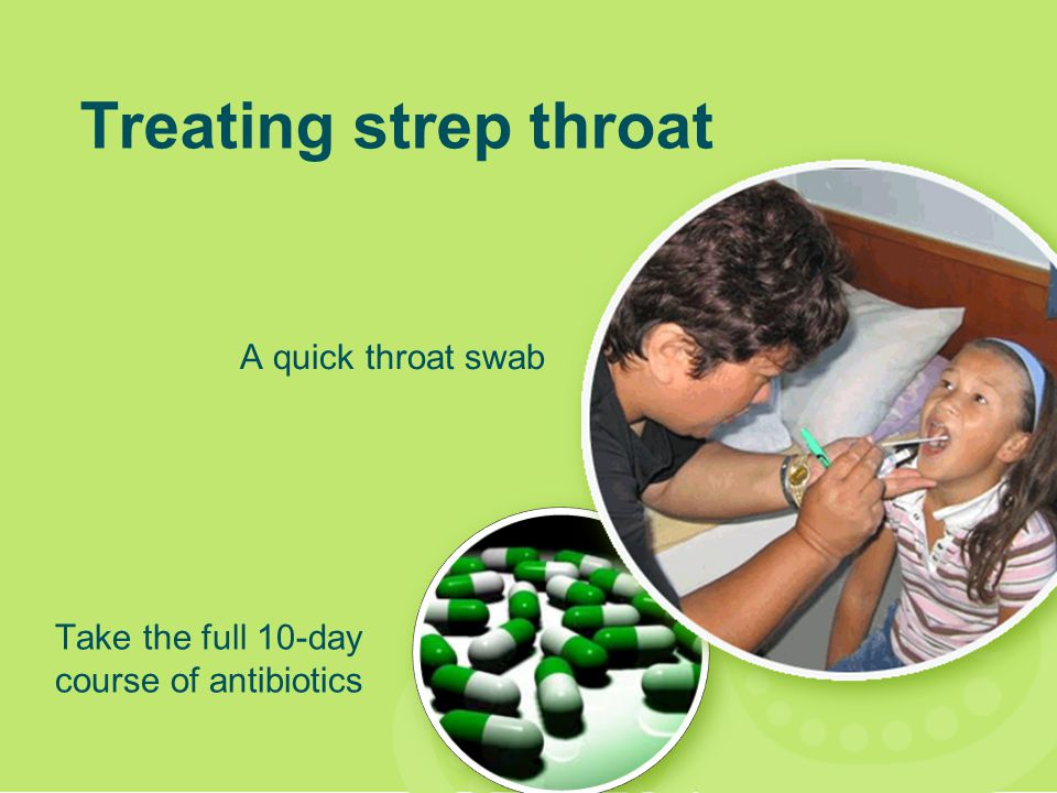 Treating strep throat A quick throat swab Take the full 10-day course of antibiotics