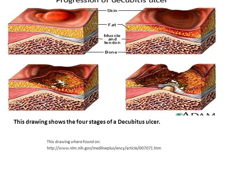 Decubitus ulcers are unnecessary and can be very painful to experience or to watch a loved one experience.