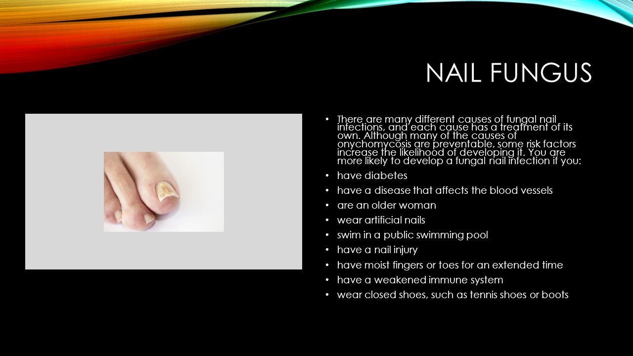NAIL FUNGUS There are many different causes of fungal nail infections, and each cause has a treatment of its own. Although many of the causes of onych