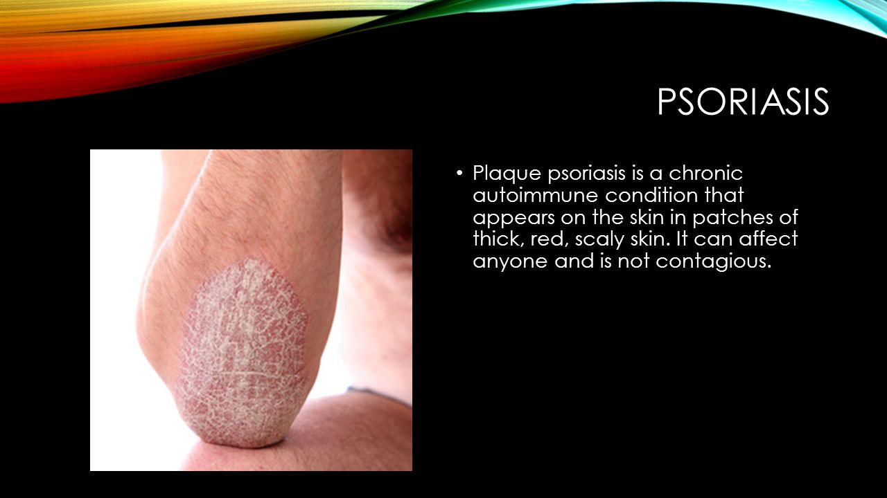PSORIASIS Plaque psoriasis is a chronic autoimmune condition that appears on the skin in patches of thick, red, scaly skin. It can affect anyone and i