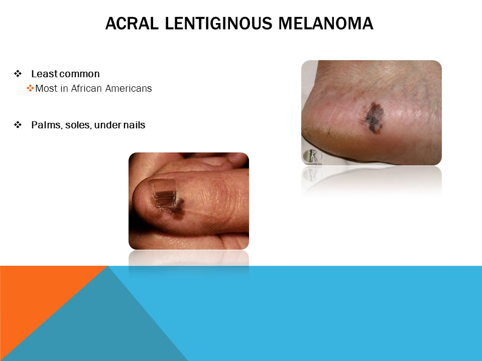 LENTIGO MALIGNA MELANOMA  Elderly  Sun damaged skin  Symptoms:  Large, flat areas  Tan or brown skin