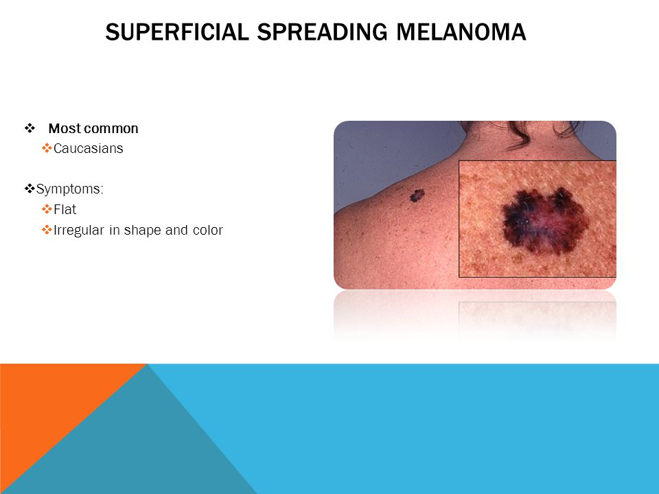 SUPERFICIAL SPREADING MELANOMA  Most common  Caucasians  Symptoms:  Flat  Irregular in shape and color