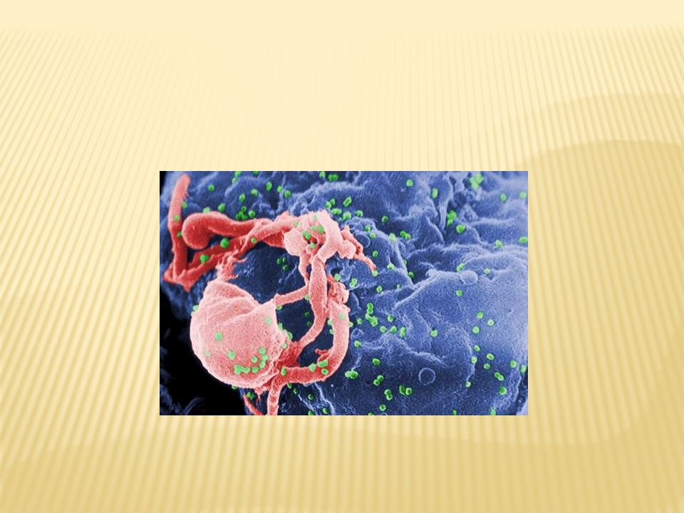 Course of HIV Infection AIDS = CD4 cell count under 200.