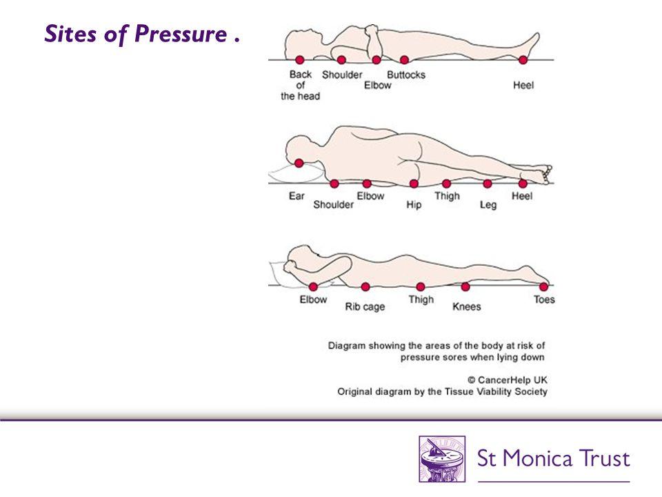 Sites of Pressure.