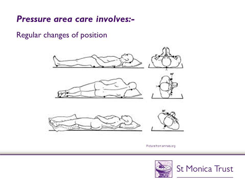 Pressure area care involves:- Regular changes of position Picture from annals.org